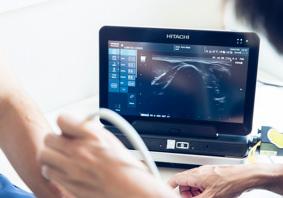エコー診断(超音波検査)のイメージ